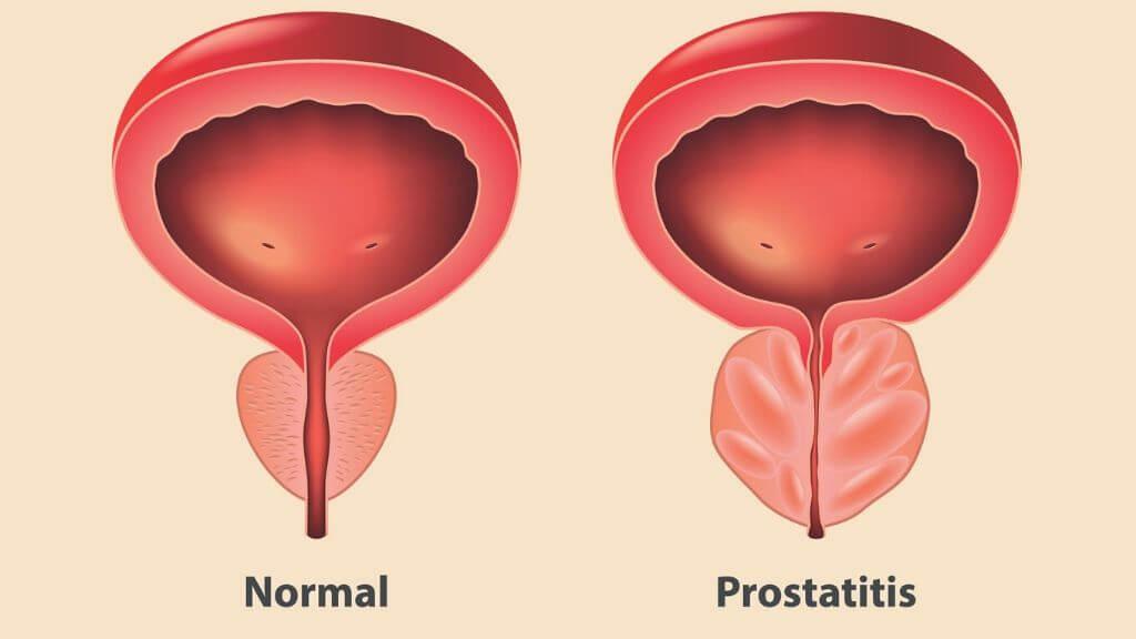 naruszenie erekcji z zapaleniem prostaty zwiększ komentarze penisa